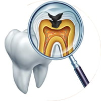 Terapia endodontica Seregno