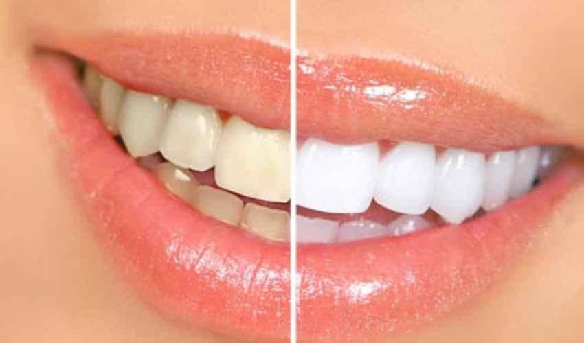 Pulizia denti tartaro