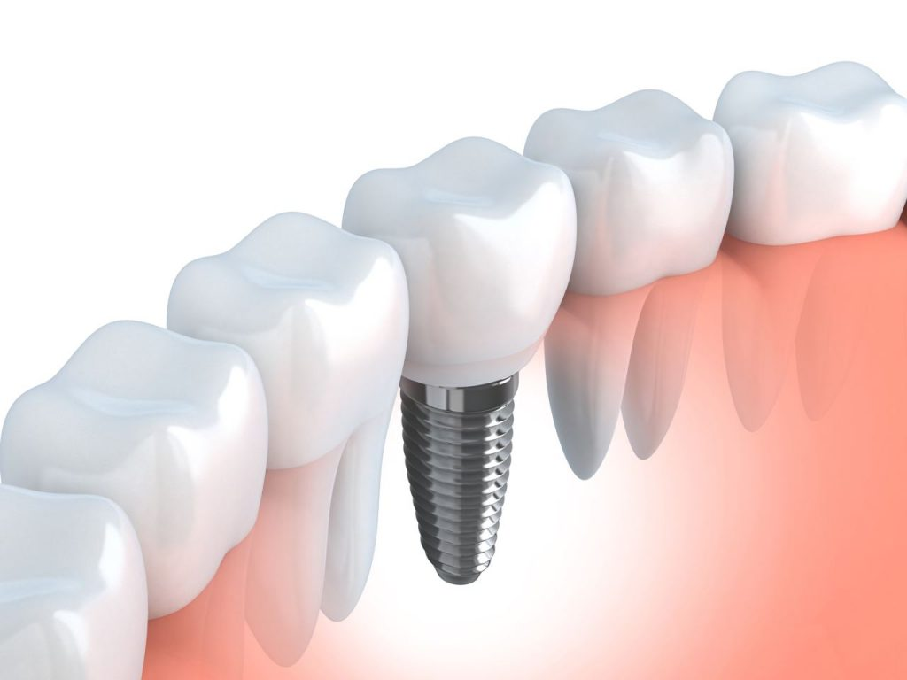 Implantologia-dentale-1024x768