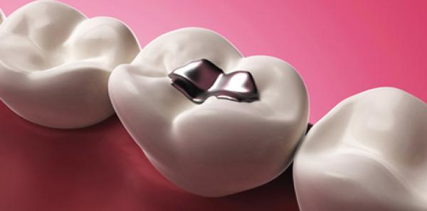 Otturazione dentale Seregno