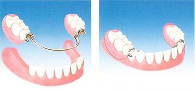 Protesi denti mobile Seregno